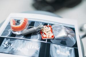 Ортодонтия - кадр