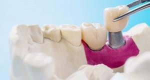 Стоматология терапевтическая  - снимок