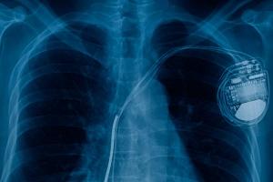 Клиническая лабораторная диагностика  - кадр